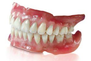 Dentures or Partials