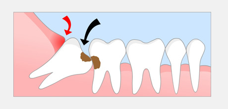 misaligned wisdom tooth