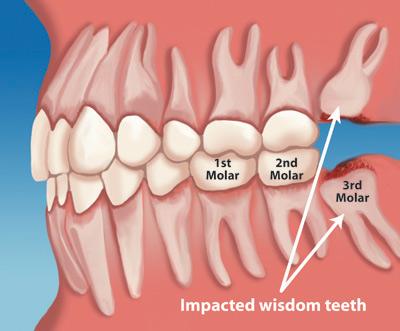 do I need to remove my wisdom teeth