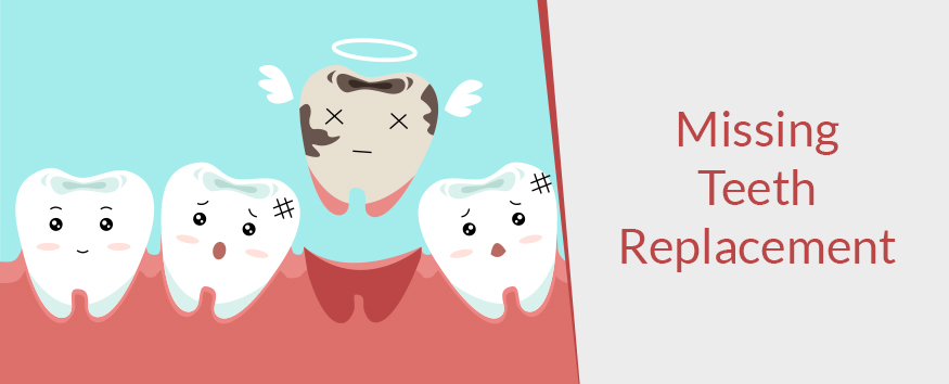 replacing missing teeth